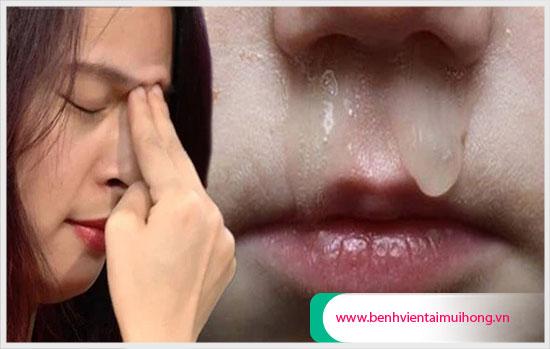 Trường hợp bấm huyệt trị sổ mũi hiệu quả