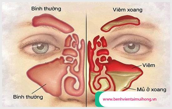 Bệnh viêm mũi dị ứng có giống viêm xoang không?