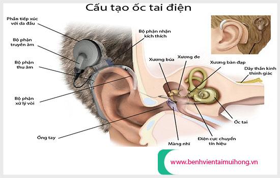 Cấu tạo các bộ phận của phương pháp cấy điện cực ốc tai