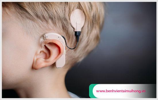 Thế nào là phương pháp cấy điện cực ốc tai?