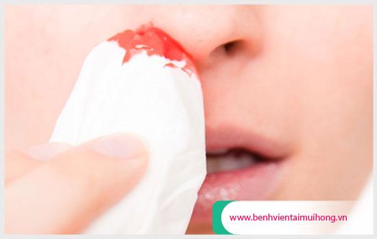 Phân loại các dạng chảy máu mũi