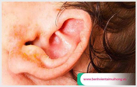 Viêm tai ngoài khiến tai chảy nước màu vàng