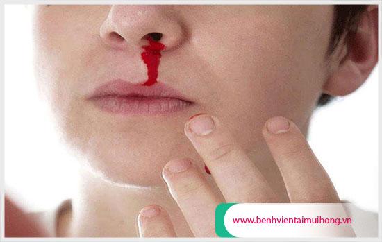 Vỡ mạch máu mũi do dị dạng mạch máu mũi